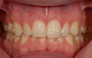 After clear braces