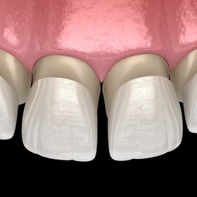 porcelain veneers sliding over teeth