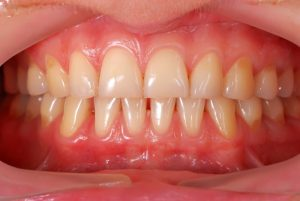 A picture of a patient's gums.